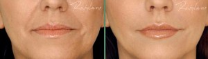lips before and after a visit to the cosmetic dermatologist