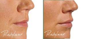 Lip augmentation is a simple procedure that can be done easily at a cosmetic dermatologist office