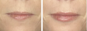 before and after images of a lip augmentation performed by David Ross Smart, MD at The University of Utah Department of Dermatology