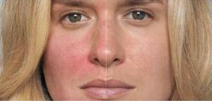 Botox treatments make a noticeable difference in the redness of the skin in a patient suffering from rosacea