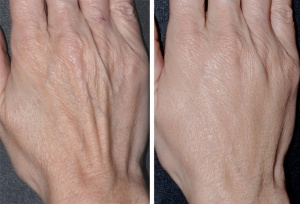 Dr. Smart treated this patient's sagging skin, a sign of aging often shown first in the thinner skin of the hands and neck, with simple cosmetic dermatology procedures in his Salt Lake City dermatology clinic.