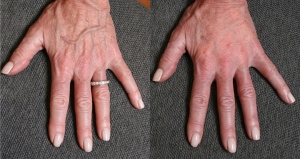 Signs of aging showing in hands before simple cosmetic dermatology procedures to reduce signs of aging performed by Dr. Smart at The University of Utah's Salt Lake City clinic