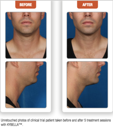 kybella fat destruction double chin treatment at University of Utah dermatology David Smart