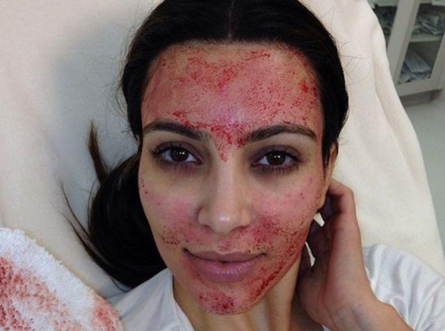 kardashian-vampire-facial.jpg